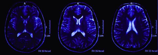 Brain scans / Image du cerveau