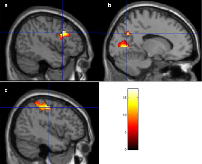 Images de l'activité cérébrale